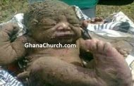 Baby buried alive but after two days, still alive